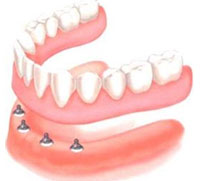denture over implant
